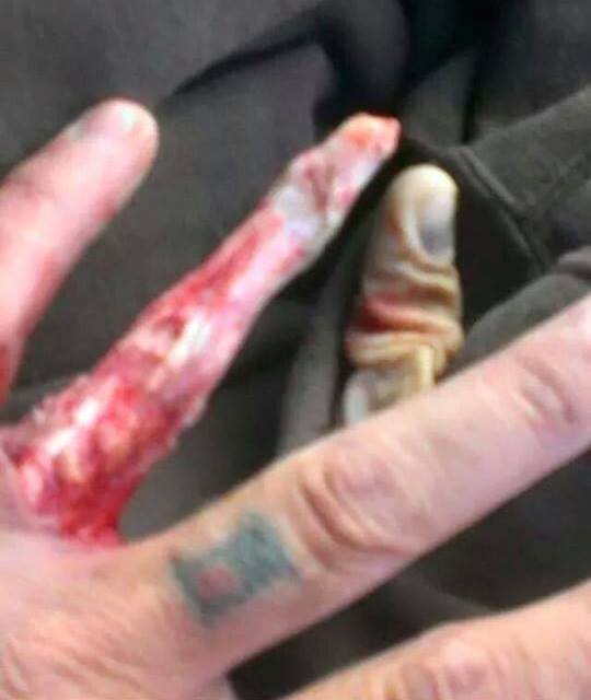Gloved finger
