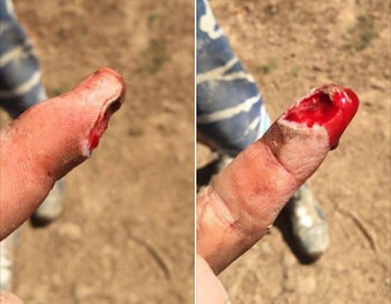 Electric planer injury